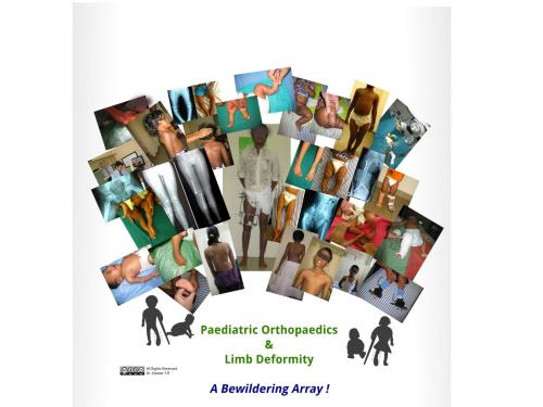 Paediatric Orthopaedics & Limb Deformity Correction