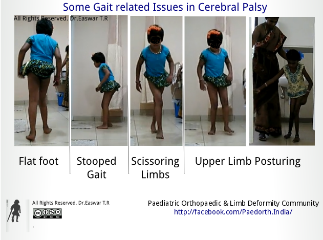 Gait Problems in Cerebral palsy