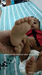 Recurrent clubfoot